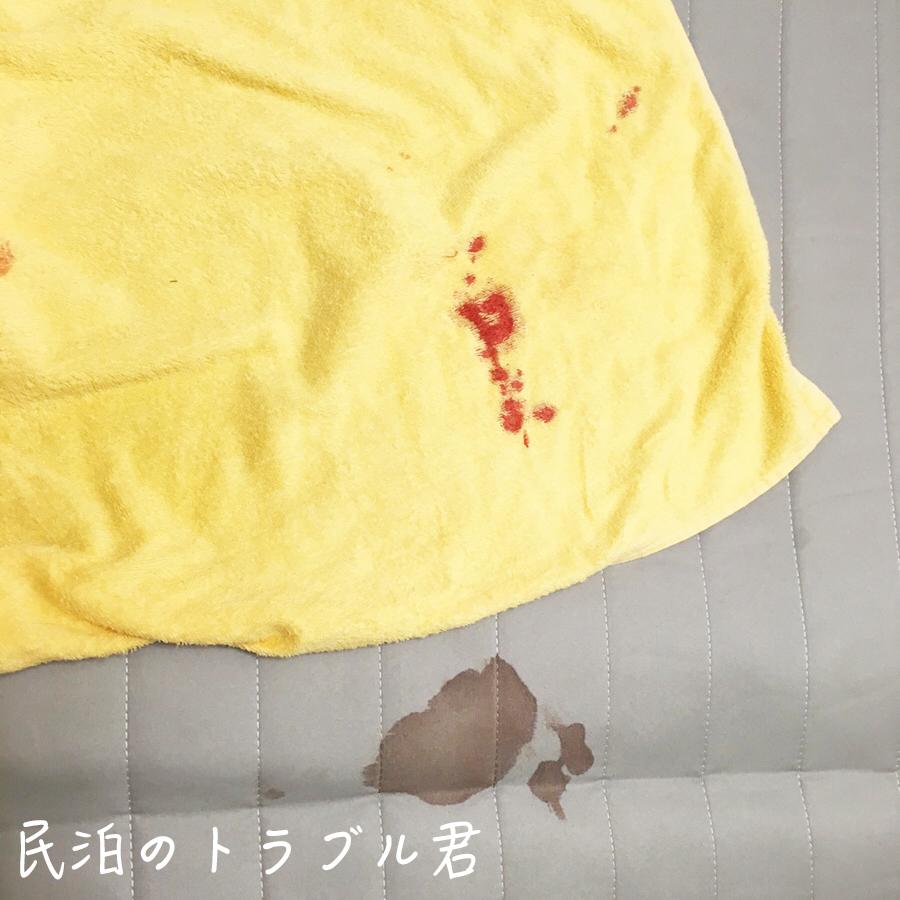 【損傷】タオルとベッドの内側に謎の血液が付着。